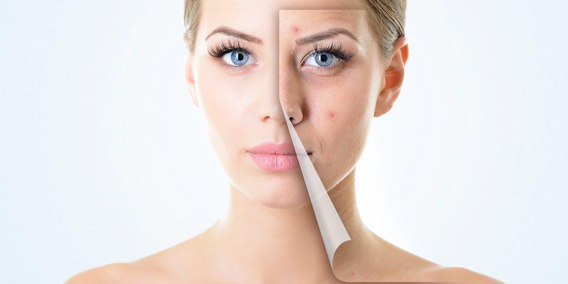 Warum entsteht die Akne bei Erwachsenen? Das sind häufigste Ursachen