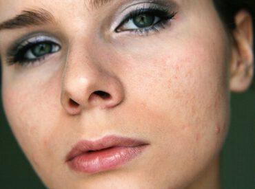 Akne bei Erwachsenen hat dieselben Symptome wie andere Arten von Akne, aber betrifft reife Personen. Diese Art von Akne soll dermatologisch behandelt werden, denn manche Frauen brauchen dann manchmal eine gynäkologische Konsultation; die Hormonstörungen sind nämlich eine Folge von chronischem Stress. Pharmakologische Methoden bringen bessere Effekte als kosmetische Eingriffe oder Hausmittel. Bevor wir jedoch die […]
